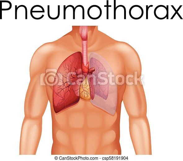 A Human Anatomy of Pneumothorax - csp58191904