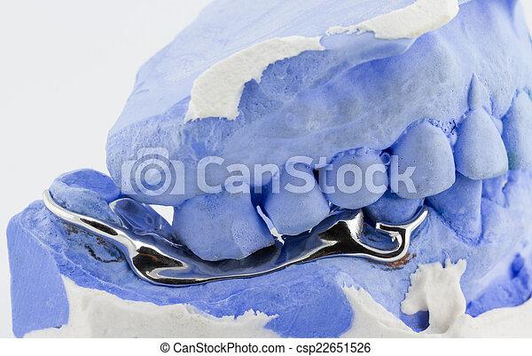 a partial denture on white background - csp22651526
