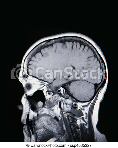 A real MRI/ MRA (Magnetic Resonance Angiogram) of the brain - csp4585327
