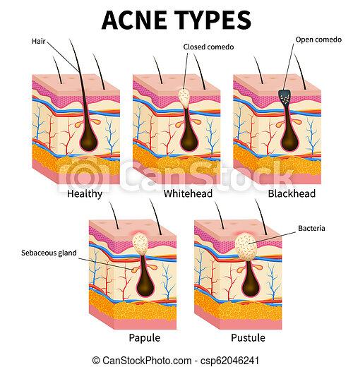 pimple pop diagram pimple diagram