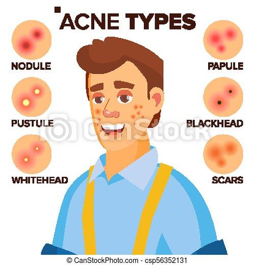 acne-types-vector-man-with-acne-facial-eps-vectors_csp56352131.jpg
