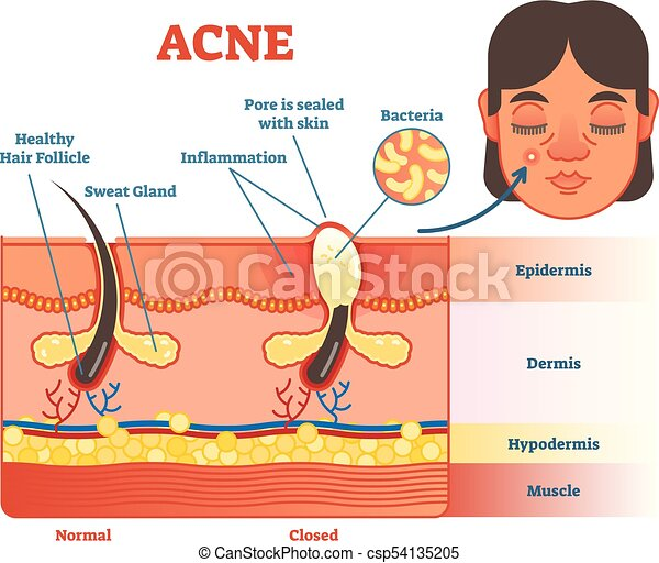 diagram of acne cyst diagram of epidermal inclusion cyst