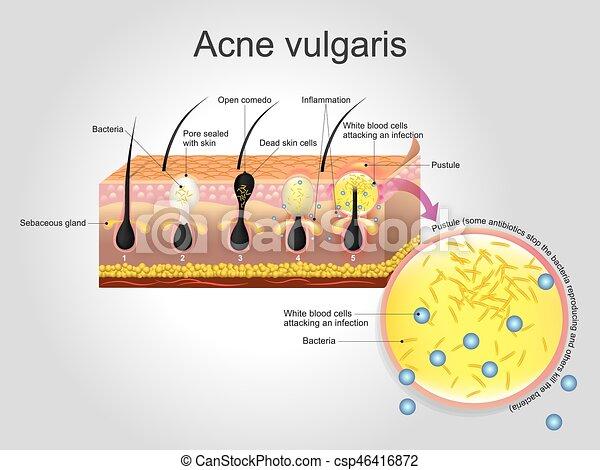 Acne Vulgaris Acne Vulgaris Is A Long Term Skin Disease That Occurs