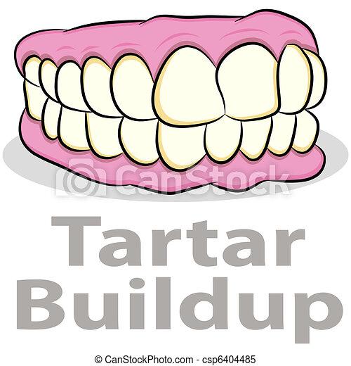 El tártaro se acumula en los dientes - csp6404485
