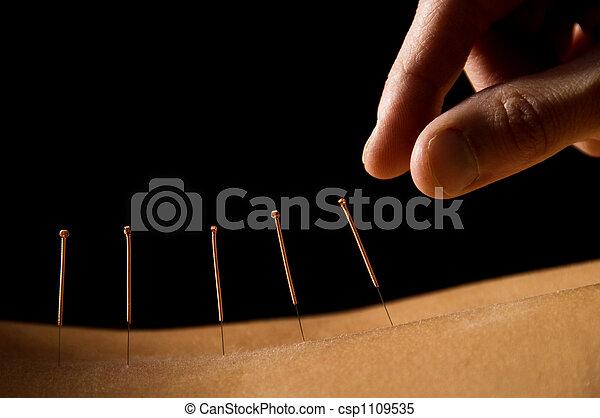 Acupuncture - csp1109535