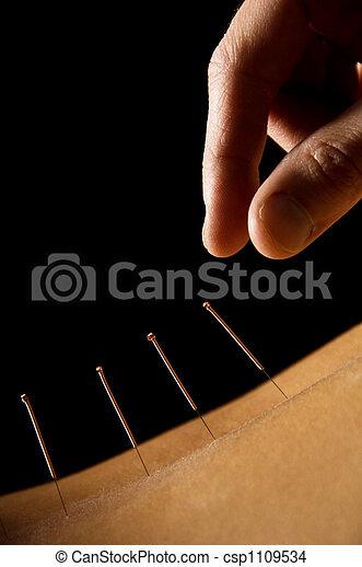 Acupuncture - csp1109534