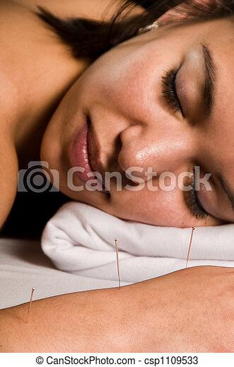 Acupuncture - csp1109533