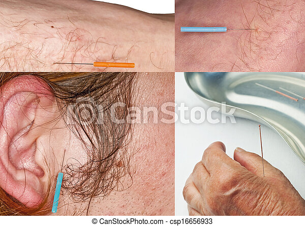 acupuncture  - csp16656933