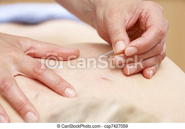 Acupuncturist treating female client - csp7427059