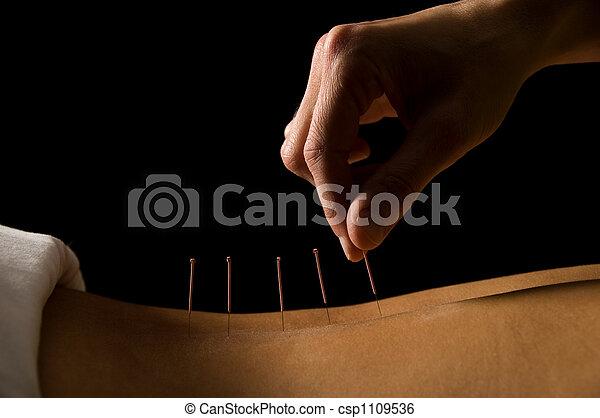 acupuntura - csp1109536