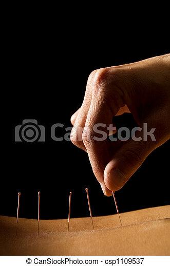 acupuntura - csp1109537