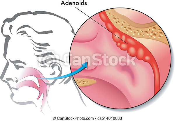 adenoids - csp14018083