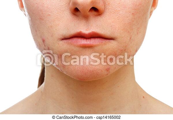 Adolescent girl suffering in acne - csp14165002