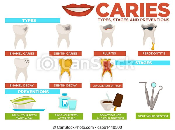 affiche, vecteur, carie, texte, prévention, étapes, types - csp61448500