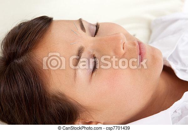agopuntura, trattamento, facciale - csp7701439