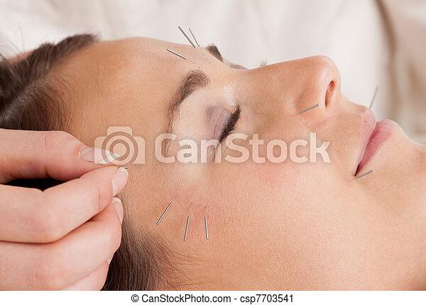 agopuntura, trattamento, facciale, dettaglio - csp7703541