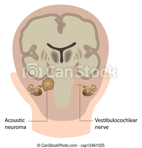 akustisk, eps10, neuroma - csp12461025