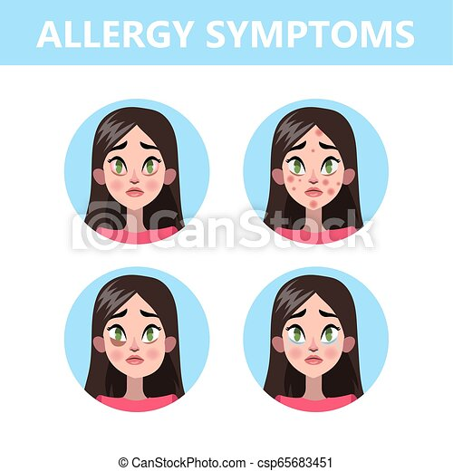 Allergy symptoms infographic  Runny nose and eye redness