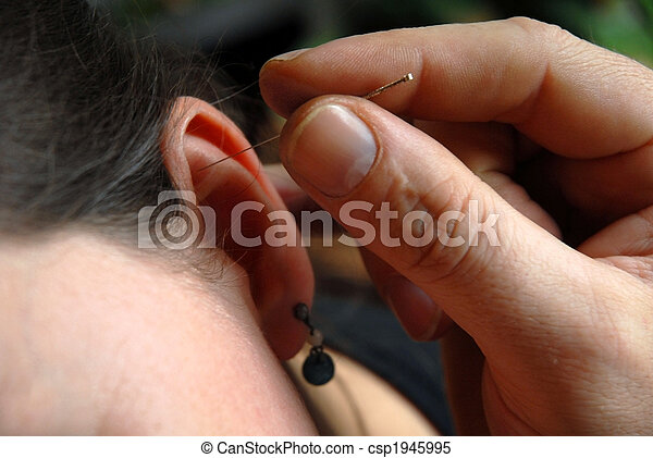Alternative Therapy: acupunture session - csp1945995