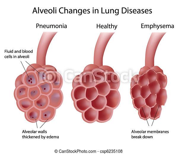 Alveoli en enfermedades pulmonares - csp6235108