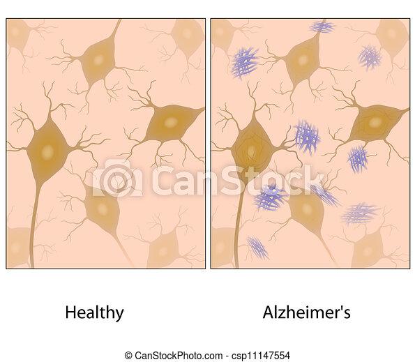 alzheimer, 脳, 組織, amyloid, w - csp11147554