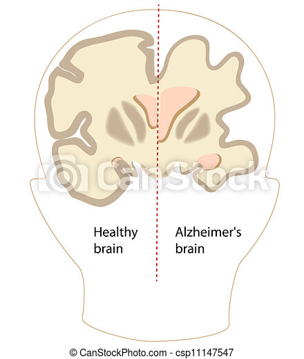 alzheimer, cerveau, maladie, eps8 - csp11147547