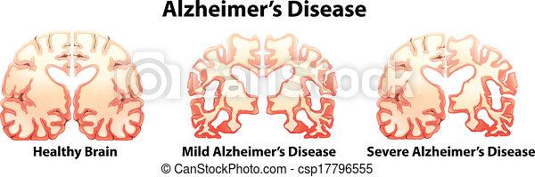 Alzheimer's Disease - csp17796555