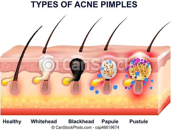 Anatomía, acné, composición, piel. Después, coloreado, acné ...