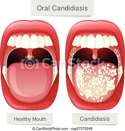 Anatomía, boca, oral, candidiasis, humano. Candidiasis, ilustración ...