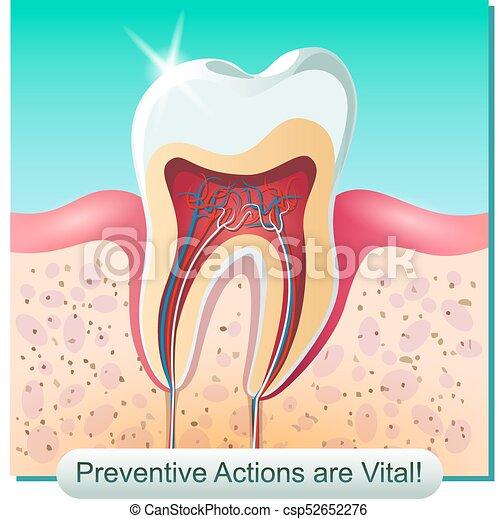 Anatomía, dental. Imagen, humano, cut., anatómico, gomas, vector ...