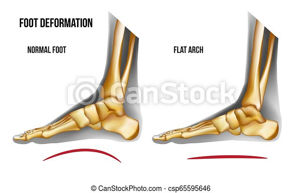 Anatomy flat foot arch medial view - csp65595646