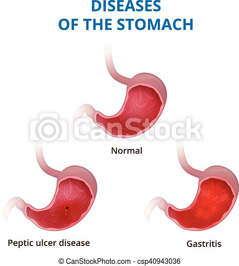 Anatomy Of The Human Healthy And Unhealthy Stomach Medical Poster
