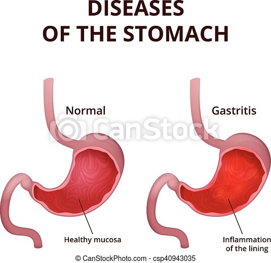 Anatomy Of The Human Stomach Medical Poster With A Detailed Diagram