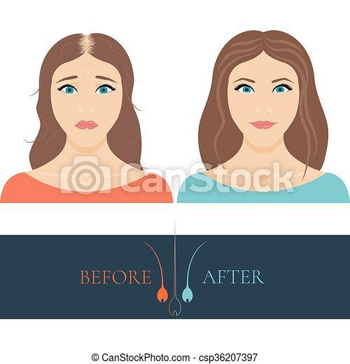anf, femme, chauve, après, cheveux, traitement, avant - csp36207397