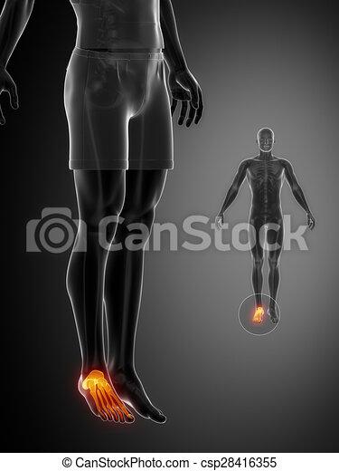 ANKLE black x--ray bone scan - csp28416355