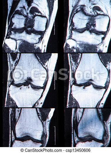 antérieur, larme, mri., cruciate, ligament, vu, genou - csp13450606
