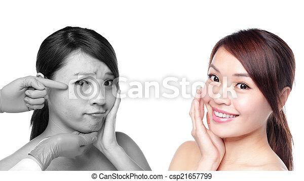 antes de, cuidado, mulher, após, pele - csp21657799