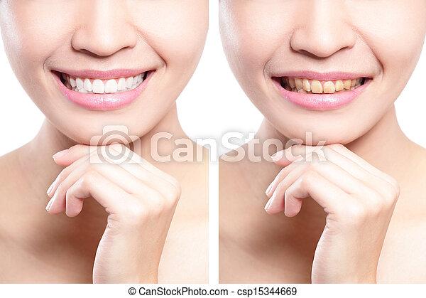antes de, mulher, whitening, após, dentes - csp15344669