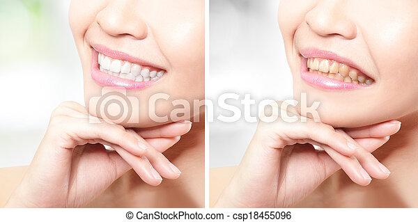 antes de, mulher, whitening, após, dentes - csp18455096