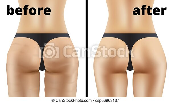Anticellulite Ass Massage Before And After Illustration