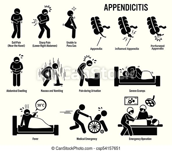how to tell appendicitis from cramps