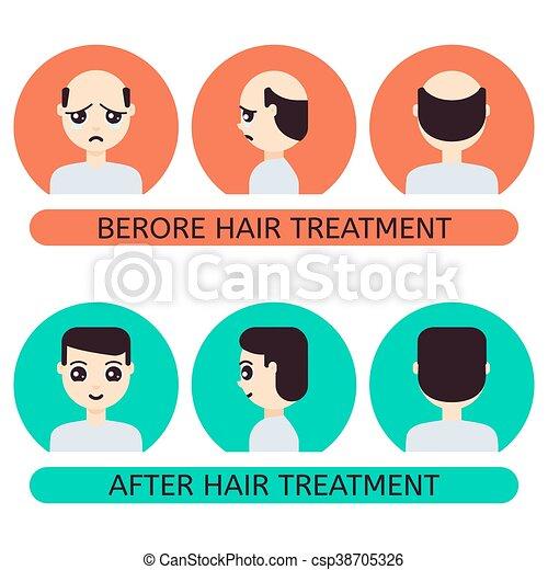 après, cheveux, traitement, homme, dessin animé, avant - csp38705326