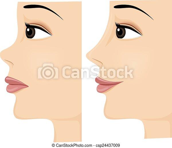 Apres Nez Avant Femme Elle Projection Apres Rhinoplasty