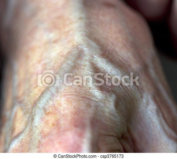artery - csp3765173