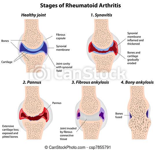 arthrite, étapes, rhumatoïde - csp7855791