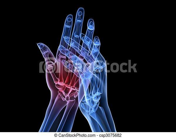 arthritis, hände, röntgenaufnahme, - - csp3075682