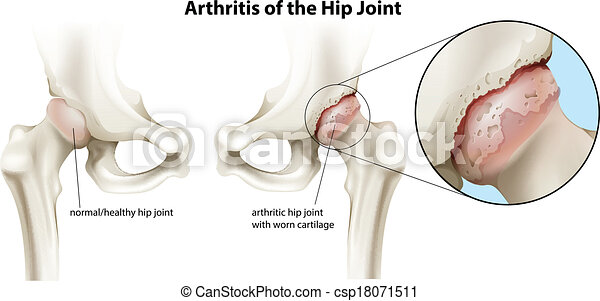 Arthritis of the hip joint - csp18071511