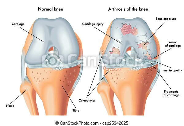 arthrosis of the knee - csp25342025