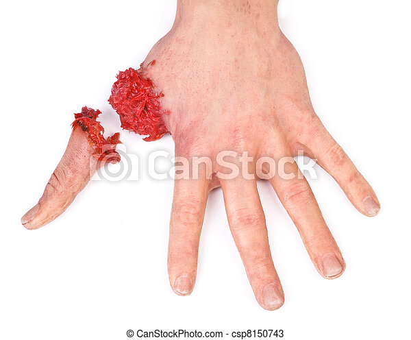 artificial human hand with cut out finger - csp8150743