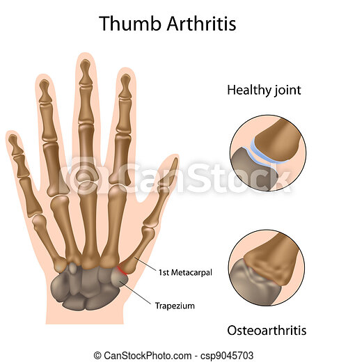 Base de artritis del pulgar, Eps8 - csp9045703